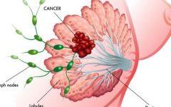 Um caroço não é o único sintoma de câncer de mama. Aqui estão mais 7 sinais
