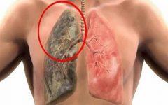 Principais sintomas que podem indicar Câncer de Pulmão