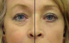 O melhor remédio caseiro contra as rugas ao redor dos olhos – e só leva 2 ingredientes!