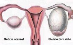 Estes são os sinais de cisto no ovário que toda mulher precisa saber (e como tratar o problema)
