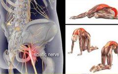 12 alongamentos para você prevenir e curar a dor ciática, no quadril e nas costas!