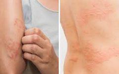 Veja o que o estresse pode causar no seu corpo!