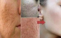 Com estas receitas, você vai diminuir os poros do seu rosto e gastando quase nada!