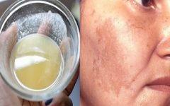 Remédios Caseiros para Eliminar Manchas na Pele, Rugas e Melasmas