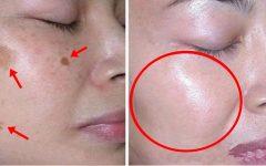 Aprenda a Eliminar Manchas Escuras na Pele ( Passo a Passo )