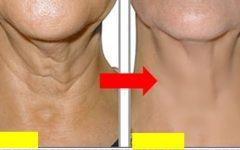 Como Remover Rugas do Peito e Pescoço Permanentemente em 2 Meses!