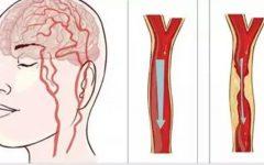 Um truque que pode salvar a vida de quem está tendo um derrame – e é muito fácil