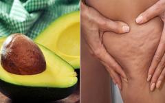 Celulite: como combatê-la com caroço de abacate