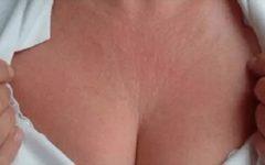Receitas caseiras para rejuvenescimento da pele redução das rugas, linhas finas dos seios e pescoço