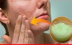 Como Tirar Manchas do Rosto? Use Isso Para Ter a Pele Lisinha e Suave Parecendo 10 Anos Mais Jovem