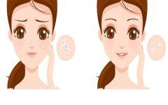 Receita caseira para rejuvenescer a pele –   antirrugas para tratar manchas e rugas profundas