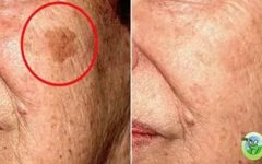 5 remédios caseiros que vão eliminar qualquer problema de pele do seu rosto!