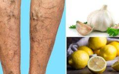 Como fazer um creme natural de limão e alho para eliminar varizes