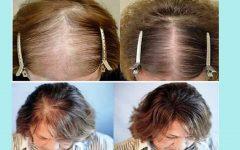 5 coisas que você deve fazer todos os dias para evitar a queda de cabelo