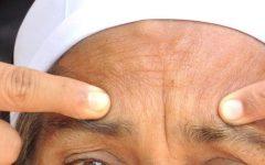 9 remédios naturais para se livrar de rugas e linhas de expressão na testa