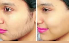 Depilação definitiva caseira: elimine os pelos sem usar lâmina ou cera