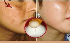 Como preparar um creme natural para clarear a pele  em casa