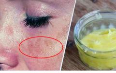 Receitas caseiras pra clarear a pele do rosto e tirar manchas
