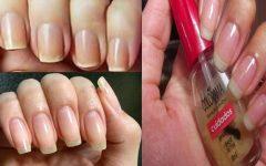 Receita caseira para que as unhas cresçam sem quebrar de formar rápida e natural
