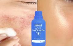 Como tirar manchas do rosto com água oxigenada 10 volumes e bicarbonato