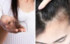 Queda do cabelo, eliminar a caspa, fortalece os fios e crescer muito rápido