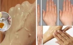 Remédio natural para tirar manchas e rugas das mãos