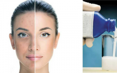 Como usar o leite de magnésia na pele para clarear, fortalecer e uniformizar