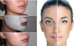 PELE DE PORCELANA: Use por 3 noites e deixe sua pele limpa e com um brilho incrível