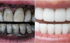 Como clarear os dentes com carvão vegetal