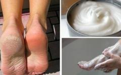 Elimine dos pés calos e rachaduras em pouco tempo