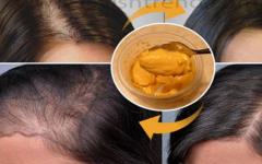 Shampoo caseiro para combater a queda de cabelo e acelerar o crescimento dos fios