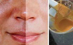 Receita caseira para eliminar manchas escuras do rosto: