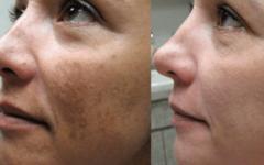 Receita caseira para clarear e remover manchas da pele e Melasmas