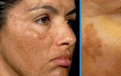 Receita Fácil para remover manchas e rugas da pele